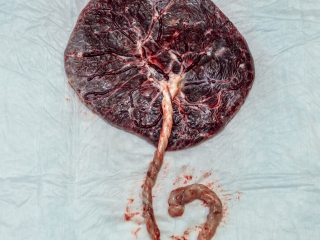 Birth Photography - Birth Photographer - placenta picture